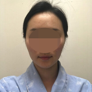 TL美容整形外科 顔面輪郭・目・鼻センターの3D頬骨縮小術の症例写真(ビフォー)