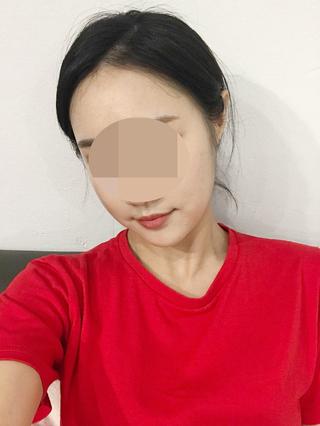 TL美容整形外科 顔面輪郭・目・鼻センターの3D頬骨縮小術の症例写真(アフター)