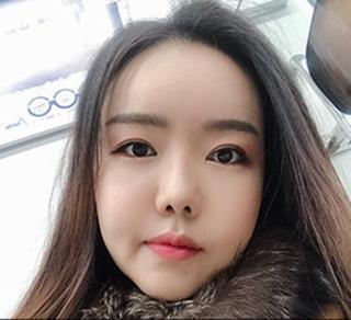 バノバギ整形外科の輪郭3点(頬骨、前顎、エラ)、顔の脂肪吸引の症例写真(アフター)