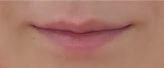 MIYAフェイスクリニックの口唇増大術(ヒアルロン酸注入法)の症例写真(ビフォー)