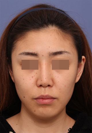 ビスポーククリニックの他院隆鼻入れ替え術(オーダー)、眉間プロテーゼ挿入術(オーダー)、鼻中隔延長術の症例写真(ビフォー)