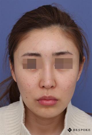 ビスポーククリニックの他院隆鼻入れ替え術(オーダー)、眉間プロテーゼ挿入術(オーダー)、鼻中隔延長術の症例写真(アフター)