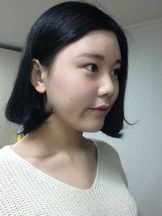 ITEM美容(整形)外科の目、鼻の症例写真(ビフォー)