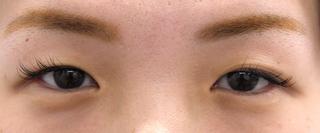 MIYAフェイスクリニックの埋没重瞼(Wクロスリング法)の症例写真(ビフォー)