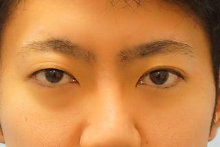 麹町皮ふ科・形成外科クリニックの埋没4点留めの美容整形の症例の症例写真(ビフォー)