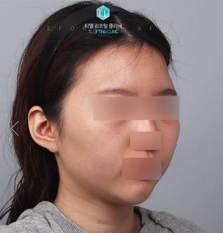 TL美容クリニック リフティング・皮膚管理センターのパワーVリフティング / ハートライン脂肪移植の症例写真(ビフォー)