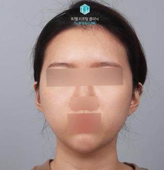 TL美容クリニック リフティング・皮膚管理センターのパワーVリフティング / ハートライン脂肪移植の症例写真(アフター)