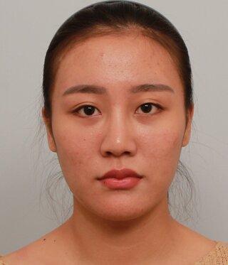 バノバギ整形外科の輪郭3点、目元矯正、鼻、脂肪移植、顔脂肪吸引、糸リフトの症例写真(ビフォー)