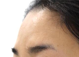MIYAフェイスクリニックの額・ヒアルロン酸注入の症例写真(ビフォー)