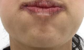 MIYAフェイスクリニックのアゴボトックスの症例写真(アフター)