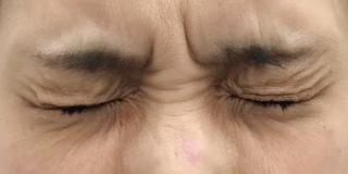 MIYAフェイスクリニックのボトックス(鼻根部)の症例写真(ビフォー)