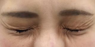 MIYAフェイスクリニックのボトックス(鼻根部)の症例写真(アフター)