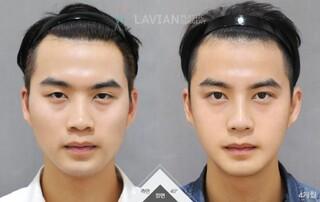 ラビアン美容整形外科の輪郭3点+目+鼻整形の症例写真(ビフォー)