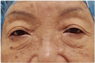 メディカルプラスクリニック新宿の目元の手術の症例写真(ビフォー)