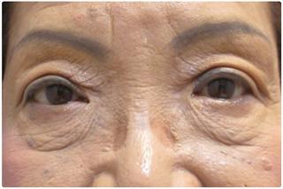 メディカルプラスクリニック新宿の目元の手術の症例写真(アフター)