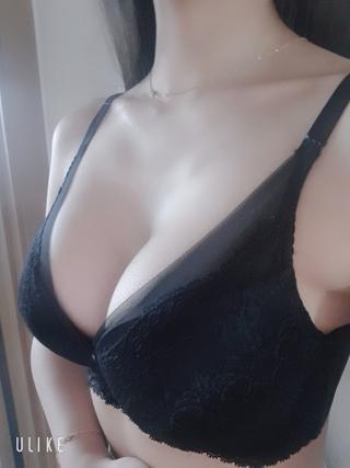 エイト美容外科の豊胸拡大術(身長166㎝/体重54㎏)の症例写真(アフター)