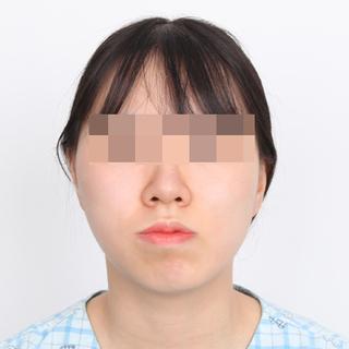 フェイスライン美容外科のVライン彫刻術(輪郭3点)の症例写真(ビフォー)