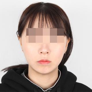 フェイスライン美容外科のVライン彫刻術(輪郭3点)の症例写真(アフター)