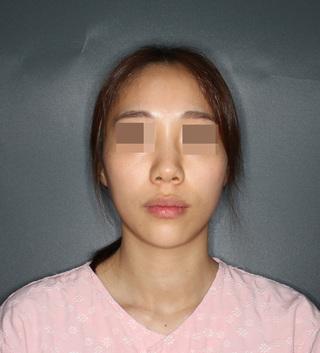 エイト美容外科の鼻整形の症例写真(ビフォー)