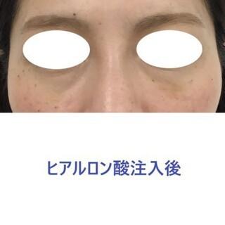 東郷美容形成外科 福岡のヒアルロン酸注射による目の下のクマ(くぼみ)治療の症例写真(アフター)