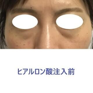 東郷美容形成外科 福岡のヒアルロン酸注射による目の下のクマ(くぼみ)治療の症例写真(ビフォー)