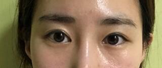 エイト美容外科の目整形の症例写真(ビフォー)