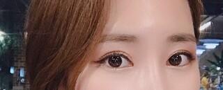 エイト美容外科の目整形の症例写真(アフター)