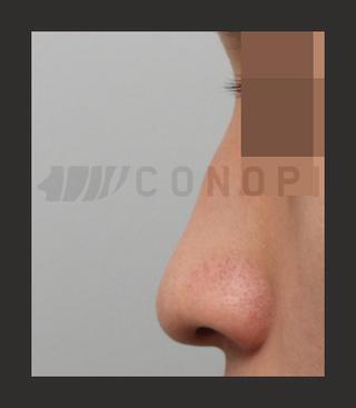 CONOPI (コノピ)整形外科の曲がった鼻の症例写真(ビフォー)
