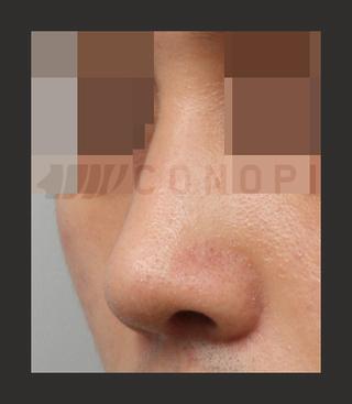 CONOPI (コノピ)整形外科の曲がった鼻の症例写真(アフター)
