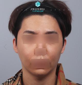TL美容クリニック リフティング・皮膚管理センターのパワーVリフティング / 糸リフティングの症例写真(ビフォー)