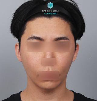 TL美容クリニック リフティング・皮膚管理センターのパワーVリフティング / 糸リフティングの症例写真(アフター)