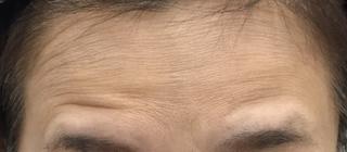 MIYAフェイスクリニックのボトックス(額)の症例写真(ビフォー)