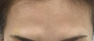 MIYAフェイスクリニックのボトックス(額)の症例写真(アフター)