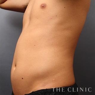 THE CLINIC(ザ・クリニック)東京院のお腹のベイザー4Dスカルプトの症例写真(ビフォー)