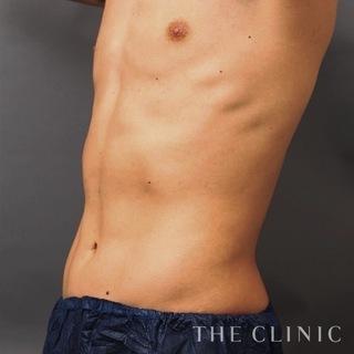 THE CLINIC(ザ・クリニック)東京院のお腹のベイザー4Dスカルプトの症例写真(アフター)