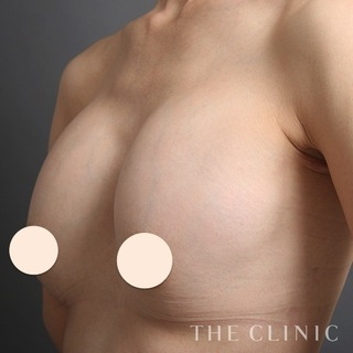 THE CLINIC(ザ・クリニック)福岡院のシリコンバッグ豊胸の修正(バッグ除去+脂肪注入豊胸)の症例写真(ビフォー)