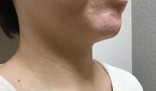 メディカルプラスクリニック新宿のHIFU(首)の症例写真(ビフォー)