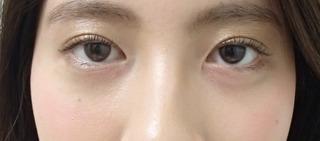 メディカルプラスクリニック新宿のアーモンドアイ+涙袋(ヒアルロン酸注入)の症例写真(ビフォー)