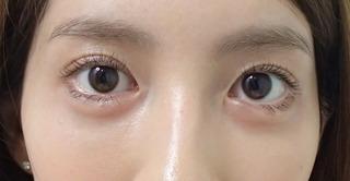 メディカルプラスクリニック新宿のアーモンドアイ+涙袋(ヒアルロン酸注入)の症例写真(アフター)