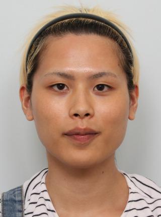 バノバギ整形外科の輪郭3点、額の脂肪移植、切開目つき矯正、目頭切開の症例写真(ビフォー)