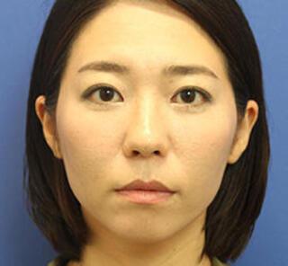 オザキクリニックLUXE新宿の3Dリポアイリフトの症例写真(アフター)