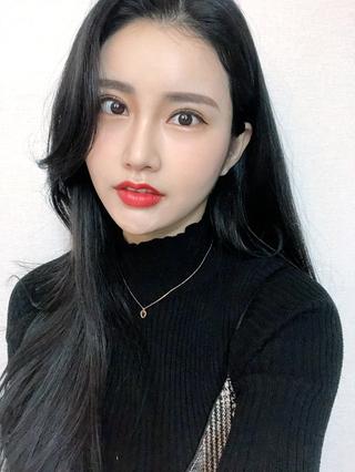 釜山フォーシーズン美容外科の目再手術+鼻手術の症例写真(アフター)
