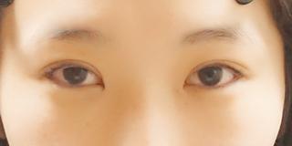 麹町皮ふ科・形成外科クリニックの埋没4点留めの美容整形の症例の症例写真(アフター)
