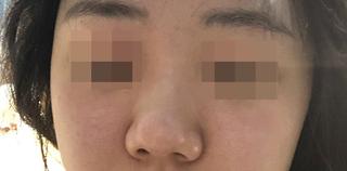 MIGO(ミゴ)整形外科の鼻整形の症例写真(ビフォー)