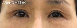 MIYAフェイスクリニックの見開き拡大術(眼瞼下垂術)+下眼瞼たるみ取り(ハムラ法)の症例写真(アフター)