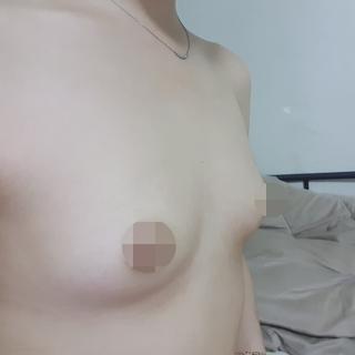 MIGO(ミゴ)整形外科の豊胸拡大術の症例写真(ビフォー)