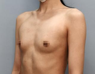 MIGO(ミゴ)整形外科の豊胸拡大術(ベラジェル)の症例写真(ビフォー)