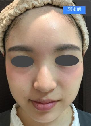 銀座スキンクリニックのエラボトックス(小顔ボトックス)の症例写真(ビフォー)