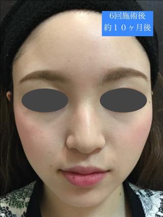 銀座スキンクリニックのエラボトックス(小顔ボトックス)の症例写真(アフター)