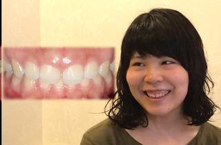 オーラルビューティークリニック白金のガミースマイル治療:歯冠長延長術(CLP)の症例写真(ビフォー)